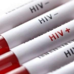 Le VIH souvent détecté seulement trois ans après l'infection - USA