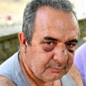 Des condamnations jusqu'à 6 mois ferme pour l'agression d'un couple gay - Gard