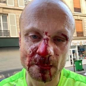 Nouvelle agression homophobe dans le 11e arrondissement - Paris