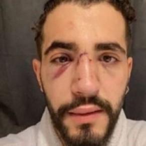 Un client gay violemment agressé par un chauffeur lors d'une course Uber - Paris