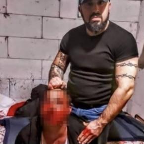 Une brute homophobe arrêtée après une violente agression - Turquie