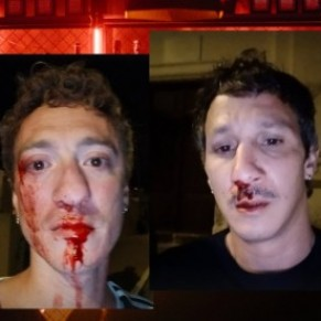 Deux mineurs mis en examen pour l'agression homophobe du Cap Corse - Justice